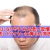 薄毛になりやすくなる悪い習慣5選 質の悪いドライヤーは薄毛の原因!?